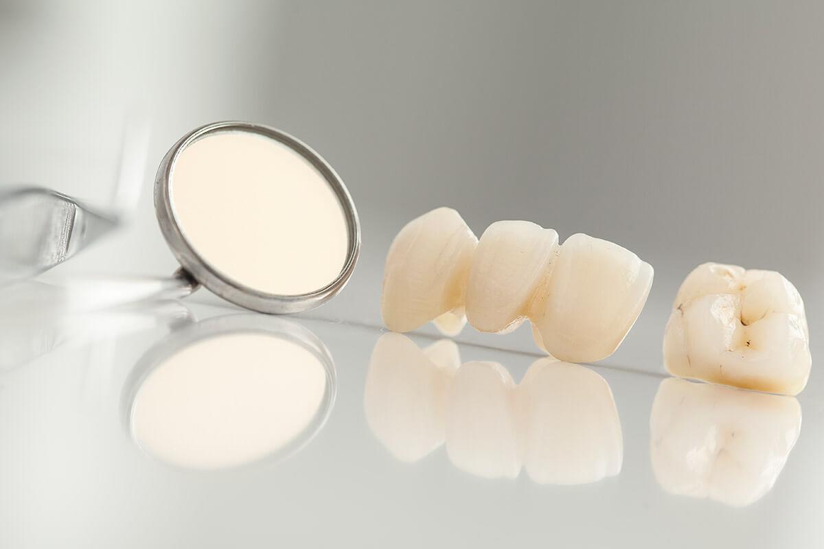 koronki-zuba
