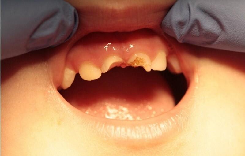 До реставрации молочных зубов