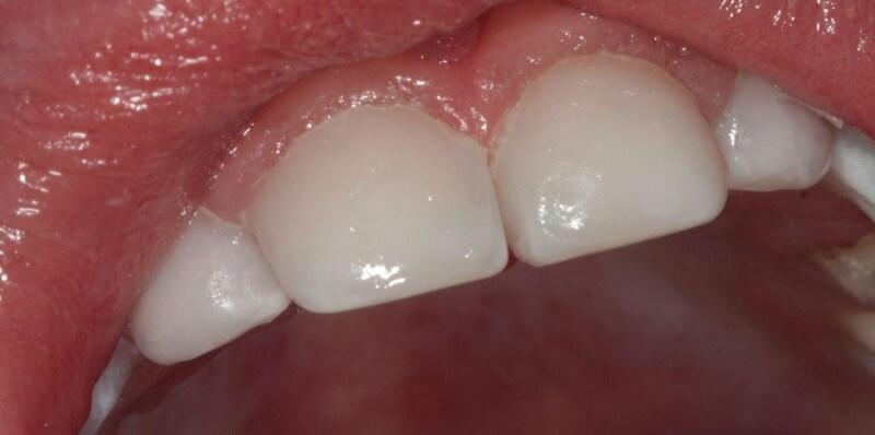 Кариес зубов после