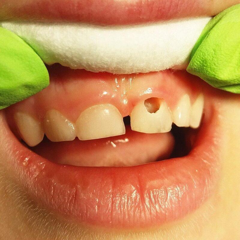 Лечение кариеса молочных зубов до