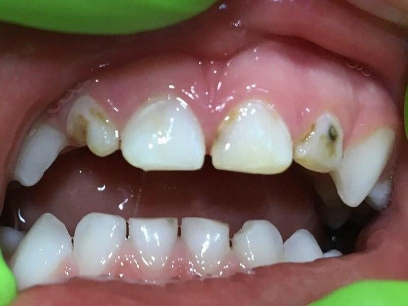 Лечение зубов во сне детям до
