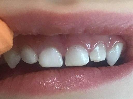 Лечение зубов во сне после