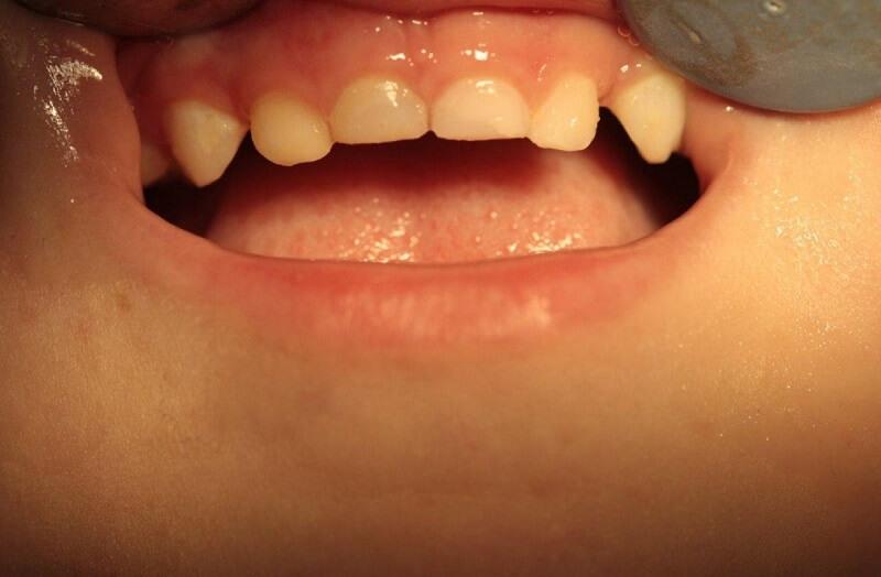 После реставрации молочных зубов