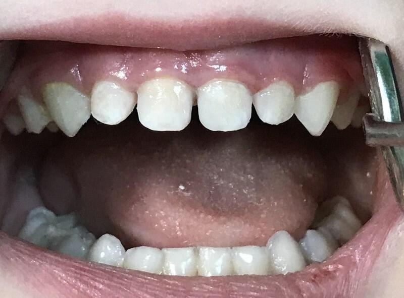 Реставрация молочных зубов после