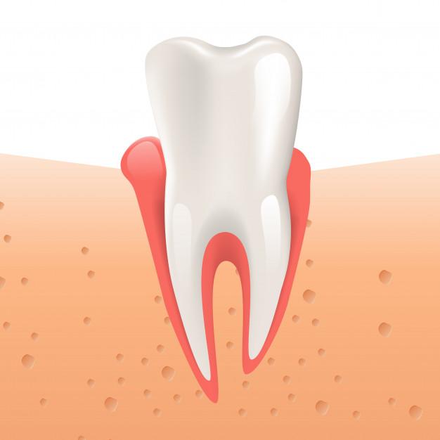 Периодонтит модель зуба
