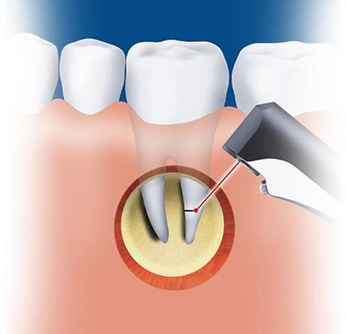Резекция зубов показания